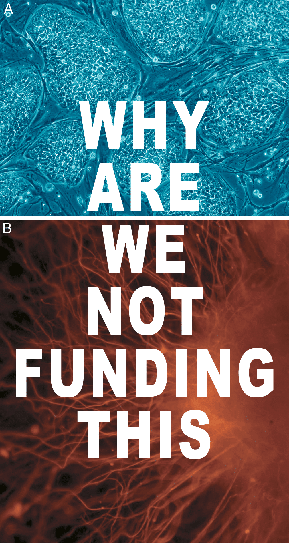 why-are-we-not-funding-this-stem-cells