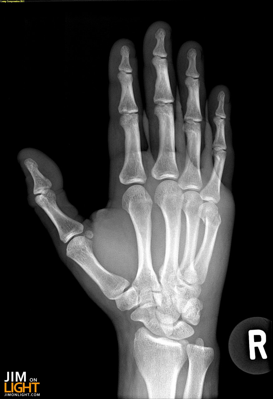 X Ray Broken Hand X-Rays of Lamps are BA...