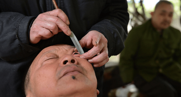 From the OMG WTF Files – The Ancient Art of EYEBALL SHAVING