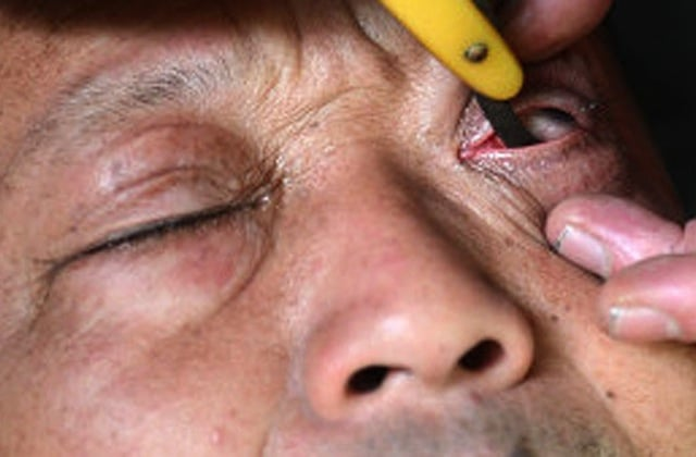 Eyeball-Shaving-China
