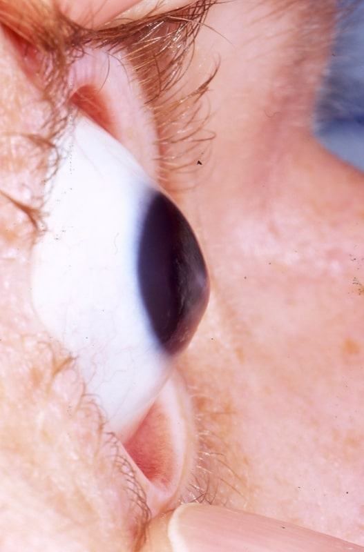 """Crazy Friday Science: New """"Dua's Layer"""" Discovered in Human Eyes, Ophthalmology Changed Forever"""