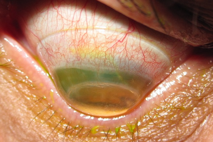 keratoconus-eye
